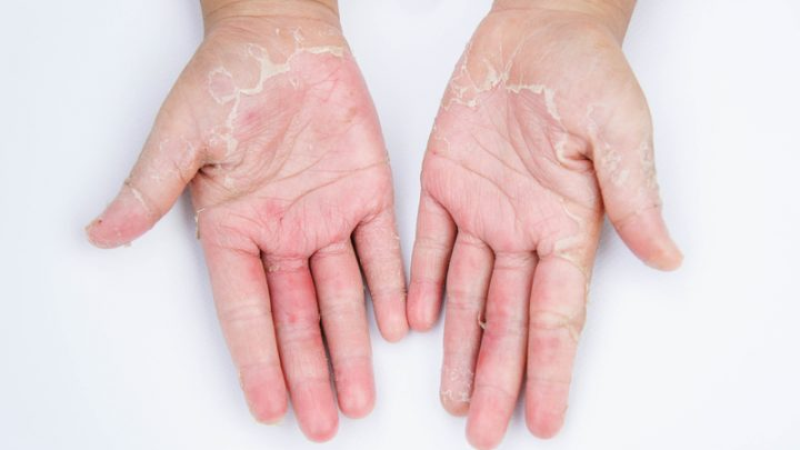 5 Wonderfully Natural Remedies to Fight Dry Skin